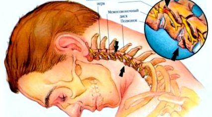 a magas vérnyomás és a nyaki osteochondrosis közötti kapcsolat a hipertónia közvetett jelei