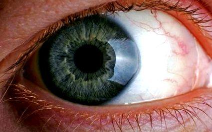 Javítsa a látás gyakorlatait a szem számára. Szemtorna gyakorlatok • licittravel.hu