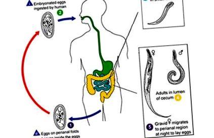 Pinworm kezelési módszerek - Giardiasis kezelés népi módszerei