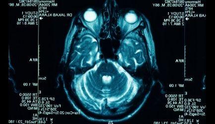 remedii populare Tratamentul Hidrocefalie la domiciliu