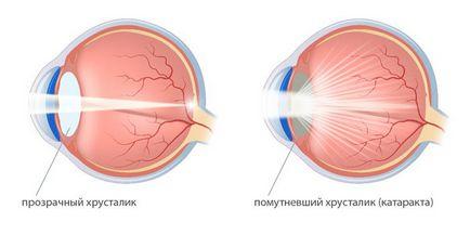 ochi cataractei - ce este, tratamentul si simptomele