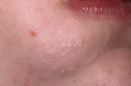 Tratamentul Blackheads, prognostic, simptome, semne, diagnostic