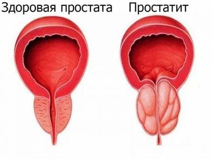 Prostatita la bărbați și primele semne de simptome