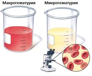 Sânge în urină - diagnostic și tratament
