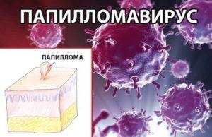 Negii și papiloamele pe gât - imagine, cauze, simptome, tratament