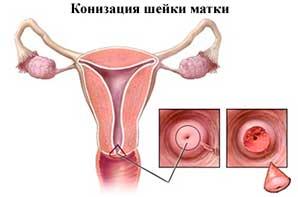 biopsie con cervical - un randament optim