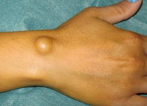 conuri formeaza sub piele pe mâini și tipurile de etanșare, cauze, simptome si tratament recomandat