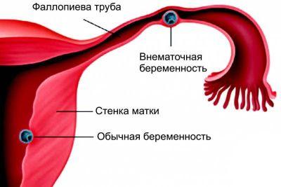 Sarcina ectopica - simptome in stadiile incipiente, impactul simptomelor