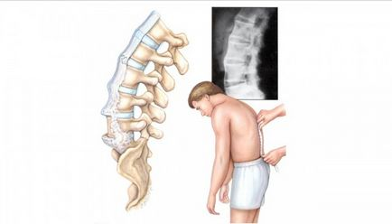 repoziționați vertebrelor