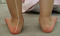 Pentru copii pantofi ortopedici și anatomice