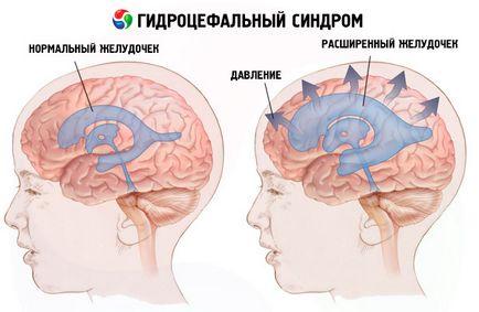 Cauzele hidrocefalie sindrom, simptome, diagnostic, tratament, competente pentru sanatate pe ilive
